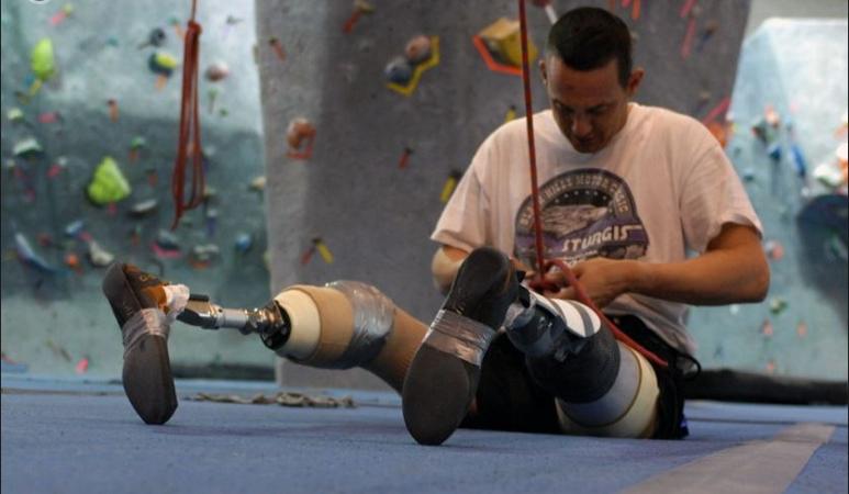 Ortopedia técnica = Reabilitação com prótese ou órtese