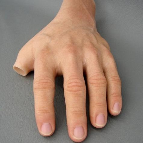 Prótese Parcial de mão em silicone - polegar