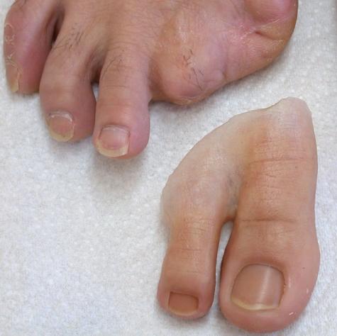 Prótese Parcial de pé em silicone - amputação 1º e 2º pododáctilos