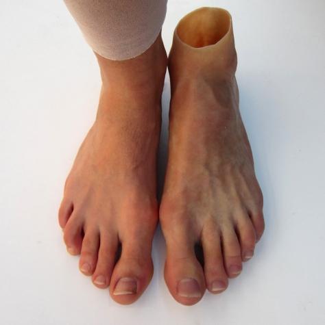 Prótese de pé total em silicone - amputação Syme